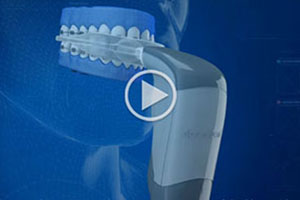 Acceledent Video Thumbnail Toothman Orthodontics in Hagerstown Frederick MD